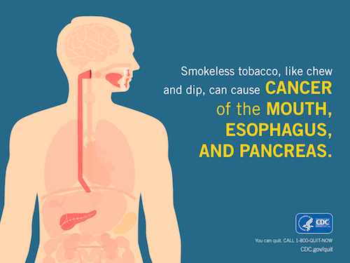 Smokeless tobacco, like chew and dip, can cause cancer of the mouth, esophagus, and pancreas.