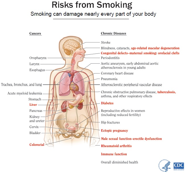 Smoking Can Damage Nearly Every Part of Your Body; Information/description of this infographic provided below.