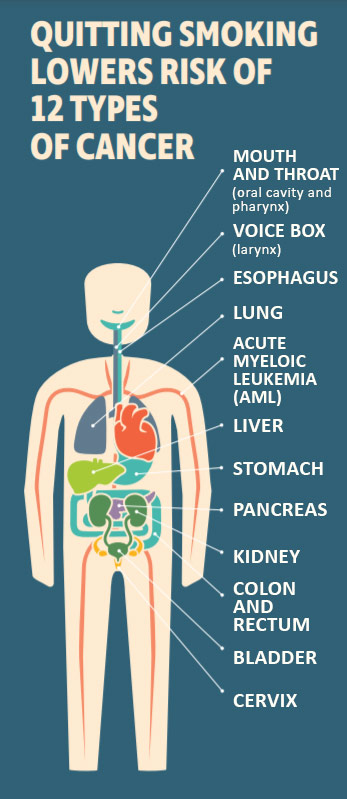 Quitting Smoking Lowers Risk of 12 Types of Cancer - Mouth and Throat (oral cavity and pharynx); Voice Box (larynx); Esophagus; Lung; Acute Myeloic Leukemia (AML); Liver, Stomach, Pancreas; Kidney; Colon and Rectum; Bladder, Cervix