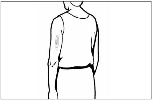This line drawing is a rear/dorsal view of an adult. The triceps muscle of the arm is shaded, showing the proper site for subcutaneous vaccine administration.