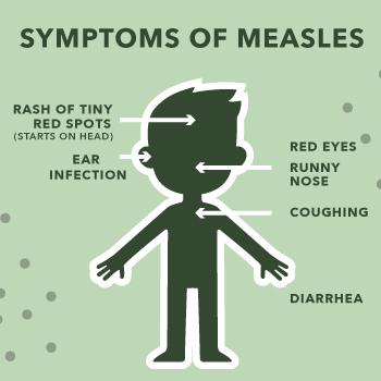 Symptoms of measles.