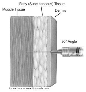 image of injection through dermis, fatty tissue, into muscle tissue at 90 degree angle