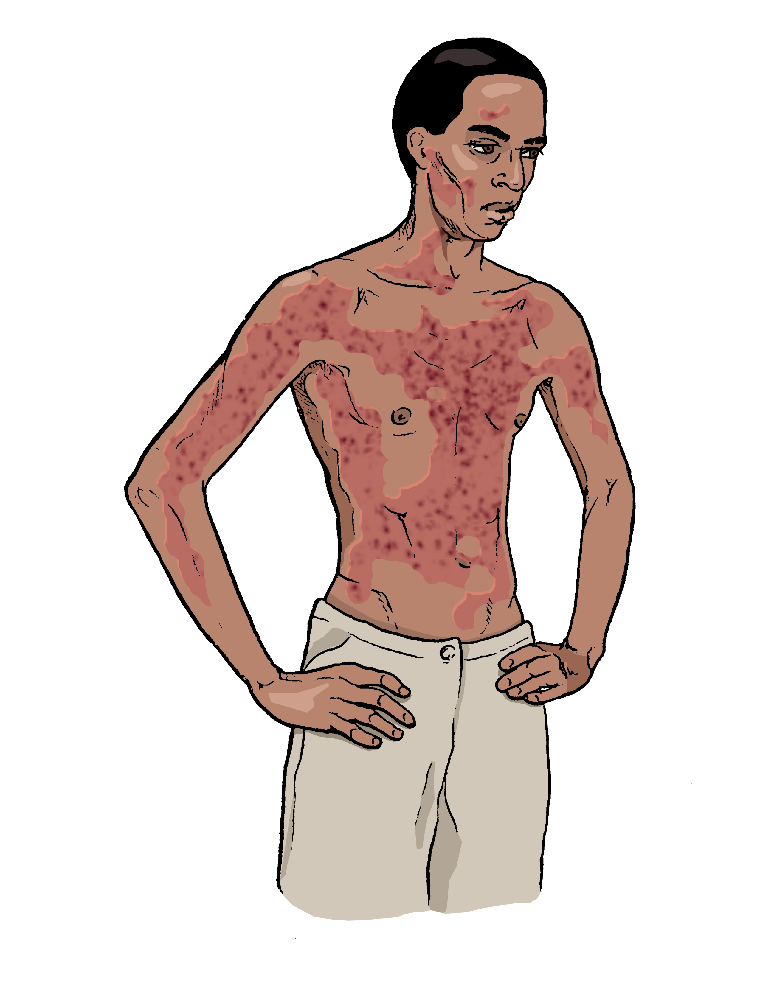 Diagnosis adult skin symptoms rash male