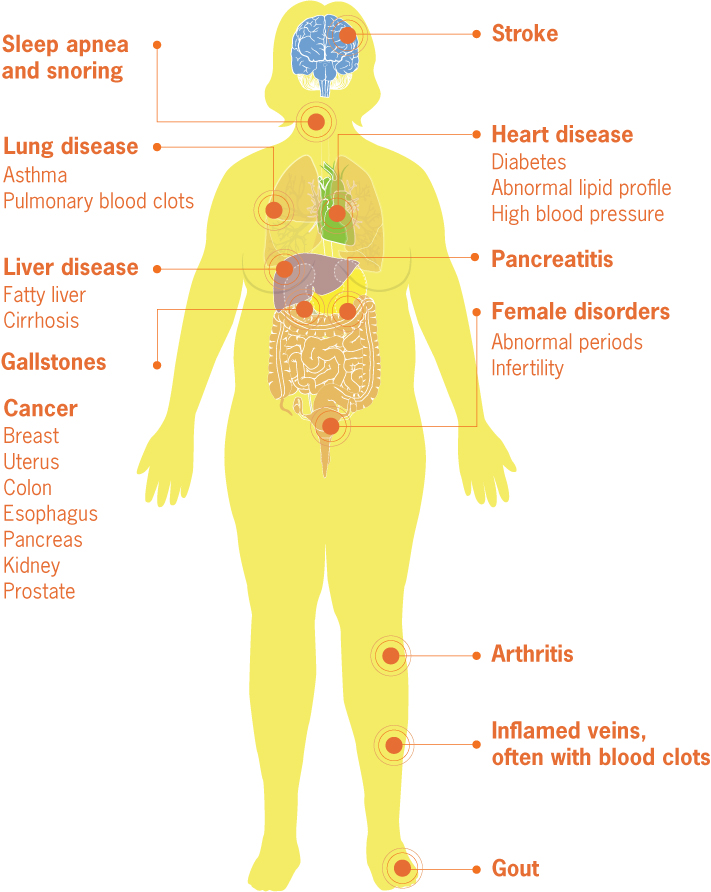 Medical Complications Of Obesity Vitalsigns Cdc