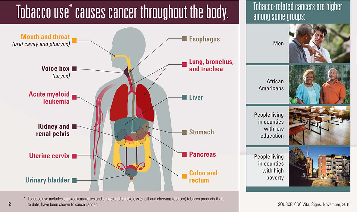 Graphic: Tobacco use* causes cancer throughout the body