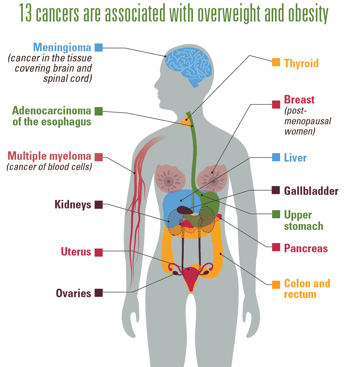 Graphic: 13 Cancers are associated with overweight and obesity