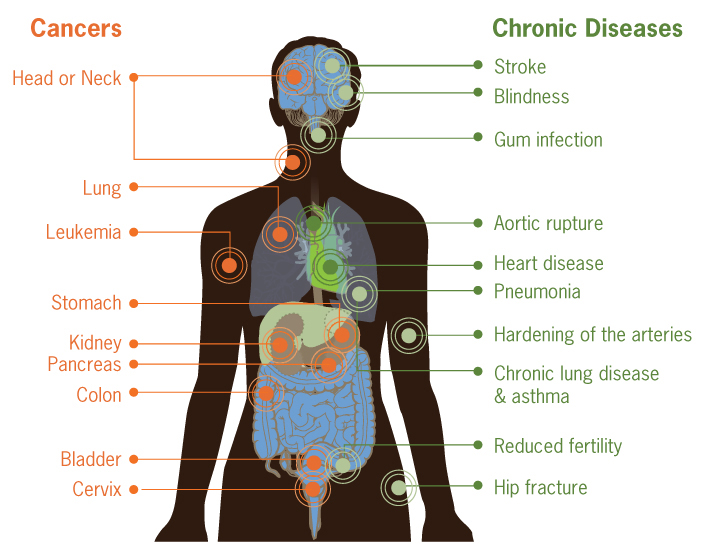 Graphic: This image is illustrates how smoking can damage every part of the body.  The image show an outline of a human body. Internal organs are visible, and circles mark the locations where smoking causes damage.  On the left side of the body, the following locations and organs are marked with circles to identify cancers caused by smoking: Head or neck, lung, stomach, kidney, pancreas, colon, cervix, and bladder.  On the right side of the body, the following locations and organs are marked with circles to identify chronic diseases caused by smoking: stroke, blindness, gum infection, aortic rupture, heart disease, pneumonia, hardening of the arteries, chronic lung disease/asthma, reduced fertility, and hip fracture. Click to view larger image.