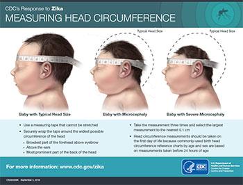 Inforgrafía que muestra la medida de la circunsferencia de la cabeza de un bebé con una cabeza de tamaño normal, un bebé con microcefalia y un bebé con microcefalia grave.