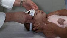Medición de la cabeza de un bebé